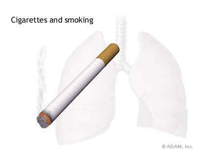 Free Essay on Smoking - AnyFreePaperscom